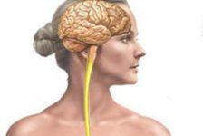 Esclerosis múltiple enfermedad degenerativa del sistema nervioso central