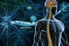 Esclerosis múltiple causas diagnóstico y tratamientos naturales