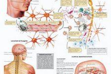 Esclerosis múltiple y cuidados del paciente