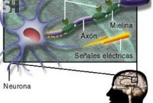 Esclerosis múltiple síntomas fases evolutivas diagnostico y tratamiento