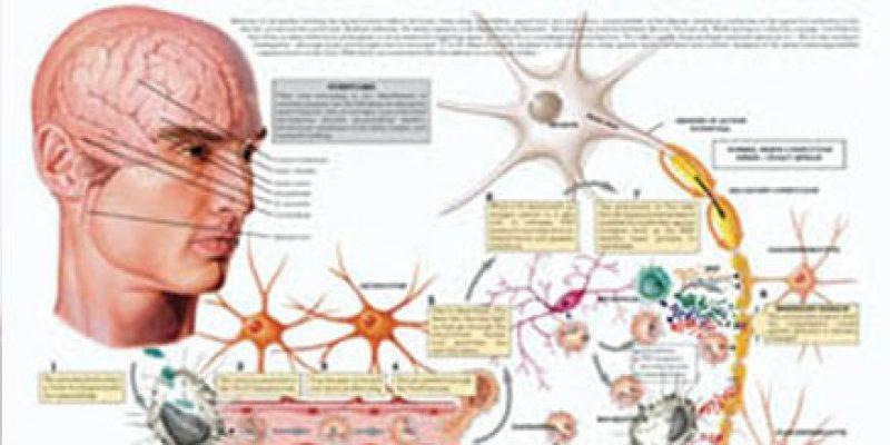 Esclerosis múltiple y neurorehabilitación del paciente