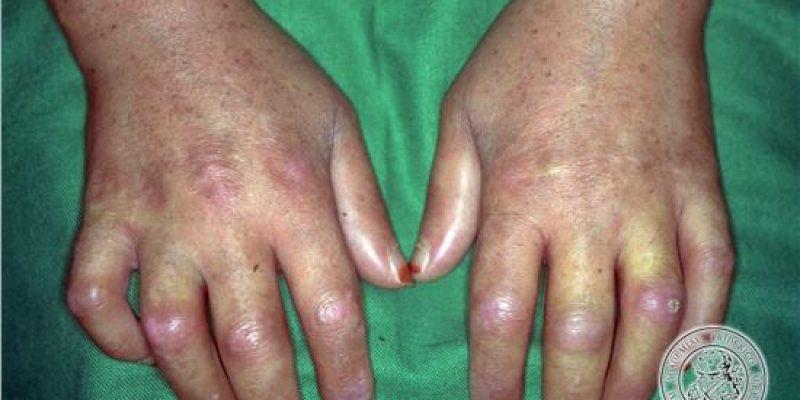 Esclerosis Sistémica definición diagnóstico y tratamiento