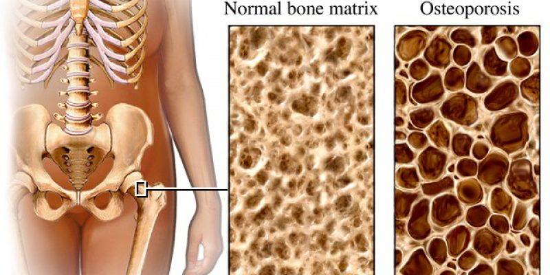Osteoporosis causas diagnóstico y tratamiento