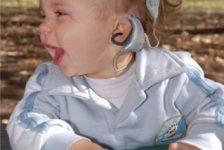 Intervención temprana del infante sordo