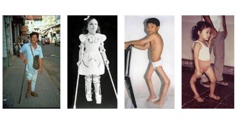 Poliomielitis – Sindrome post polio diagnostico y tratamiento