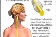 Esclerosis múltiple síntomas diagnostico y tratamiento