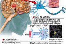 Esclerosis múltiple problema neurológico