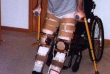 Síndrome post polio Ejercicio y Equilibrio Muscular