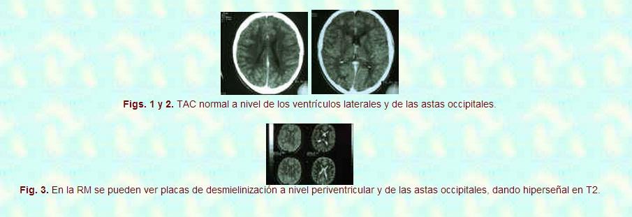 Esclerosis Múltiple Infantil