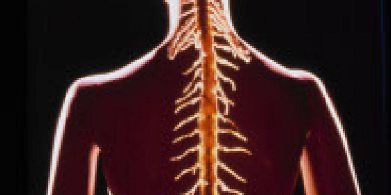 Lesión raquimedular preparación psicológica del terapeuta físico