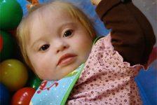Síndrome de Down y estimulación temprana