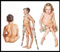 Síndrome Post Polio