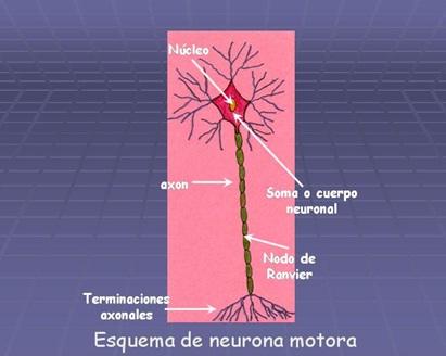 Síndrome postpoliomielitis