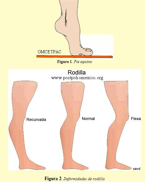 Trastornos ortopédicos de la poliomielitis