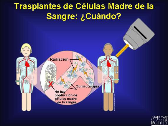 Trasplante de células madre y trasplantes de médula ósea