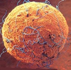 Células madre y Parkinson diferenciación al linaje dopaminérgico