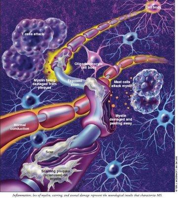 Esclerosis Múltiple causas síntomas prevención y tratamiento