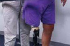 Amputación de miembro inferior guía de fisioterapia