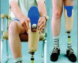Amputación de miembro inferior y rehabilitación