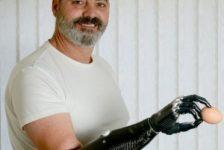 El hombre del brazo biónico