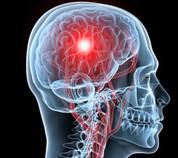 Lesión cerebral adquirida fundamentos para una rehabilitación ambulatoria
