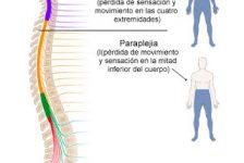 Lesión medular guía de fisioterapia y rehabilitación