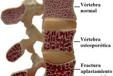 Osteoporosis diagnóstico y tratamiento guía rápida