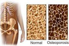 Osteoporosis guía de diagnostico y prevención