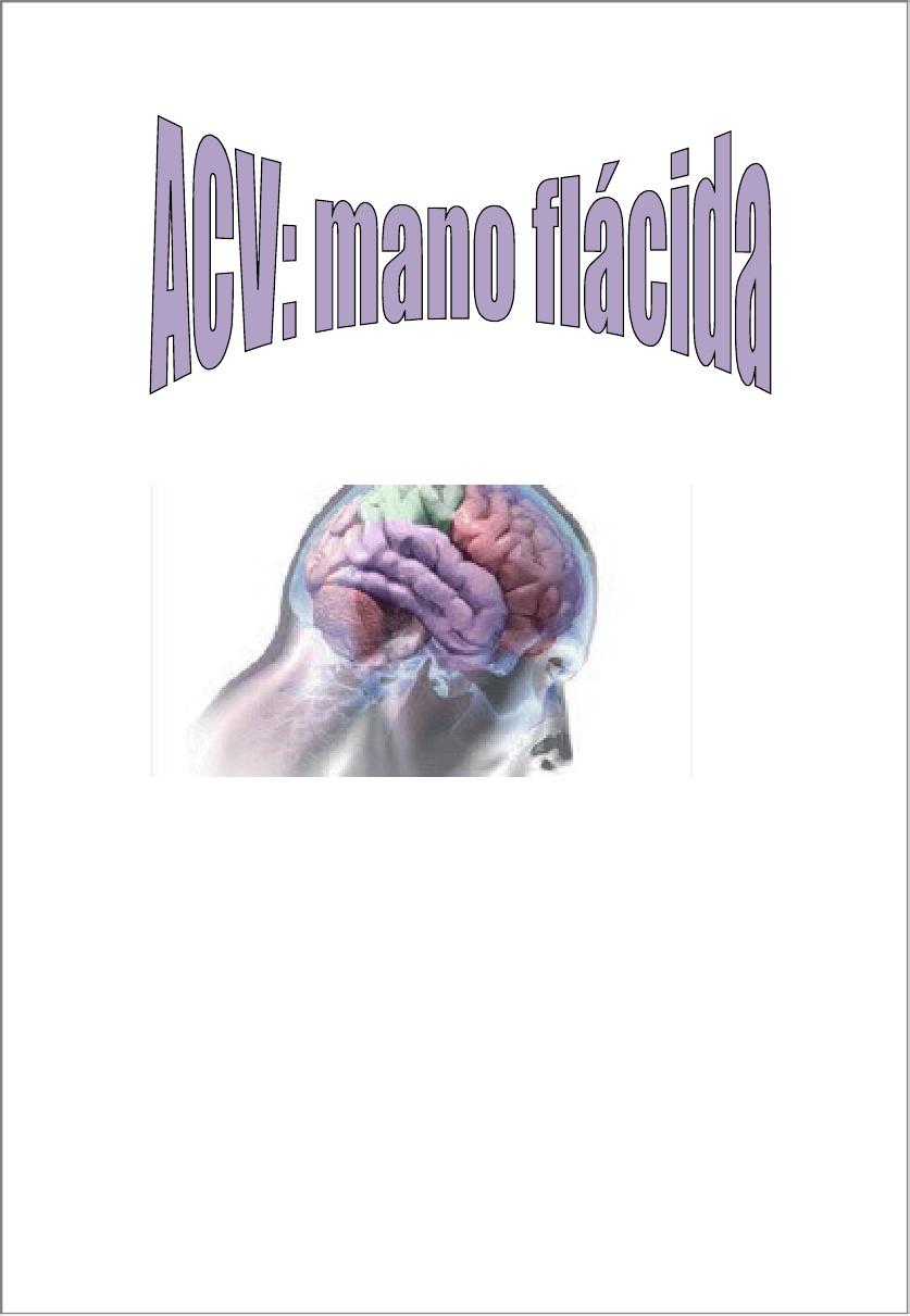 Accidente cerebralvascular mano flácida