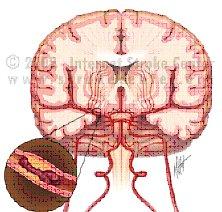 Enfermedad Cerebro Vascular manejo en unidad de cuidados intensivos
