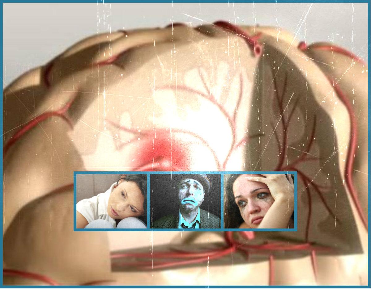 ACV accidente cerebrovascular y rehabilitación