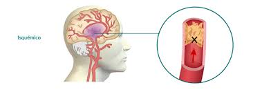 Accidenete cerebrovascular isquémico y hemorrágico