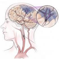 Ataque cerebrovascular isquémico tratamiento actual