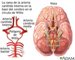 Enfermedad cerebrovascular historia diagnostico y tratamiento