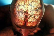 Enfermedades cerebrovasculares