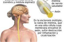 Esclerosis Multiple consejos de alimentación