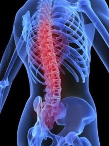 Osteoporosis guía de práctica clínica