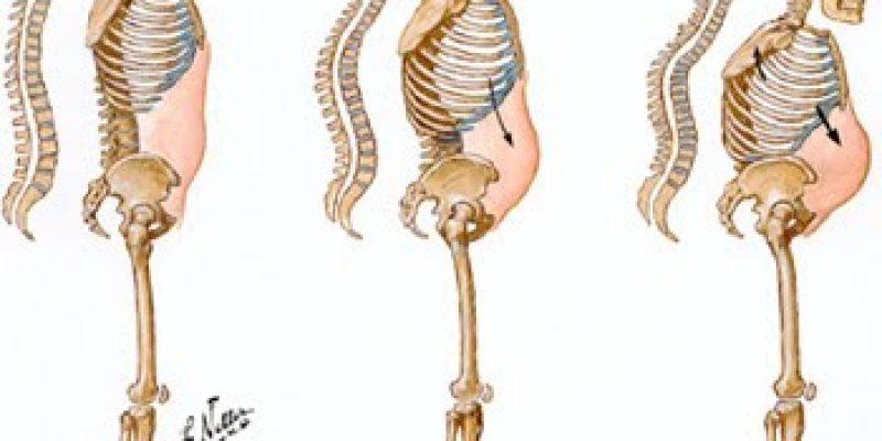 Osteoporosis principales mitos y verdades