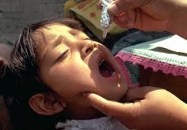 Poliomielitis síntomas causas tratamiento y prevención