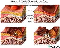 Ulceras por presión tratamiento y prevención