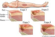 Ulceras por presión en unidad de cuidados intensivos