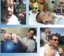 Sindrome de Down guia de atencion temprana