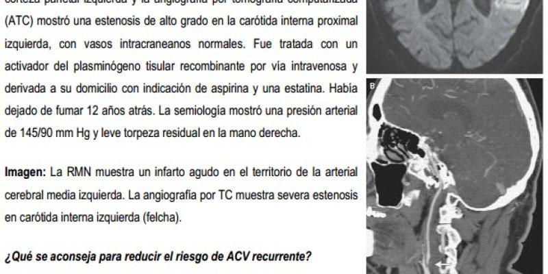 ACV inquemico y ACV transitorios