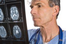 Accidente cerebro vascular guía de prevención