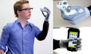 Joven recibe protesis bionica operada por iPhone 5