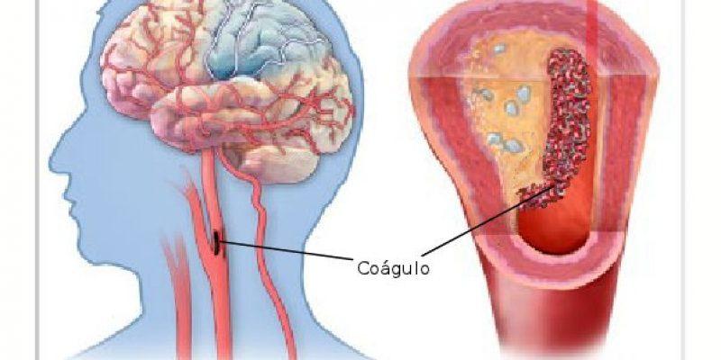 Ataque Cerebrovascular Isquémico del Adulto