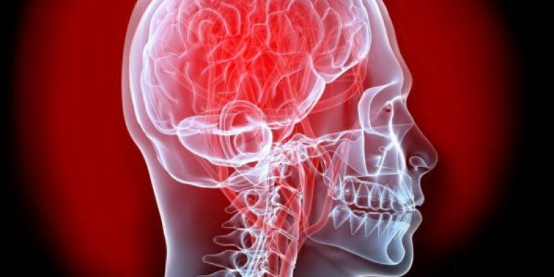 Ataque Cerebrovascular aspectos generales