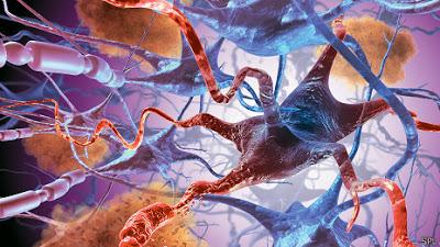 Descubren químico clave para tratar Alzheimer