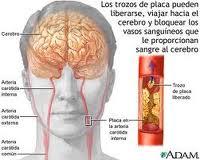 ACV hemorragico plan de cuidados