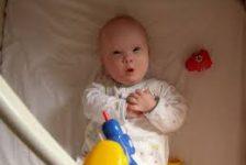 Alimentacion del bebe con Sindrome de Down